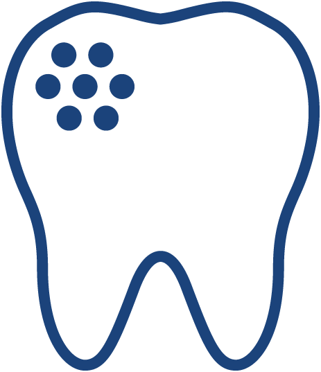 Plaque & Tooth Decay