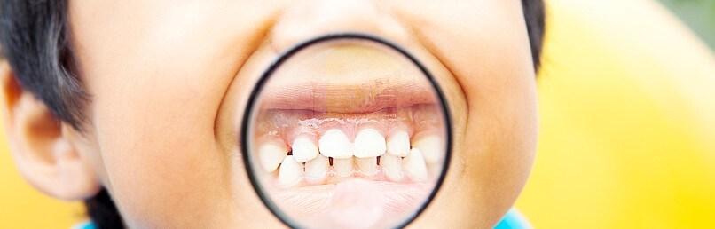 Gigi Susu Anak Pertumbuhan Masalah Dan Cara Perawatannya Pepsodent