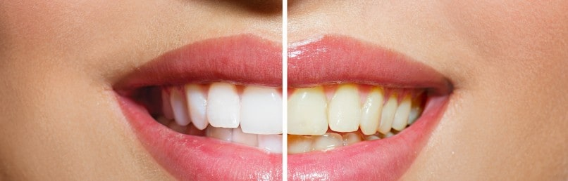 Different Ways to Get Your Teeth Whitened