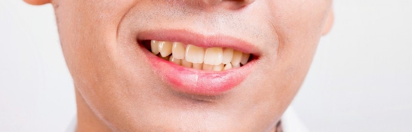 What Causes Yellow Teeth and Discolouration